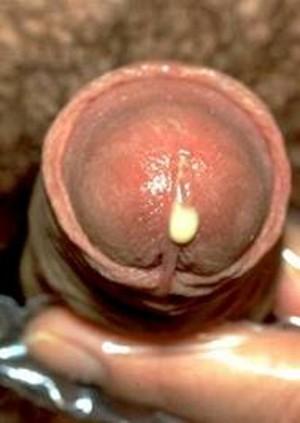 Для диагностики трихомониаза достаточно. из влагалища женщины и выделений из мочеиспускательного канала мужчины...