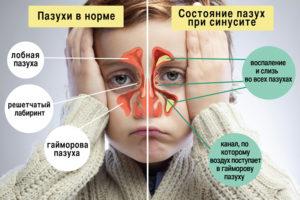 Лечение гайморита в Люберцах